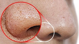 Download Do THIS to Remove Blackheads From Your Nose Video