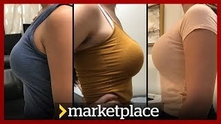 Download Buying breast implants: Hidden camera investigation (Marketplace) Video