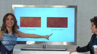 Download Tria Beauty 4X Laser Hair Removal Device for Face & Body with Jane Treacy Video