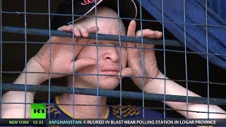 Download Fear & Loathing: Albino Africans Survival in Tanzania (RT Documentary) Video