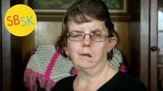Download An Abortion Survivor's Story (Living with Facial Paralysis and Other Conditions) Video