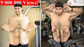Download Weight Loss ~Their Transformation after Loose Skin Removal! ~ Body Bizarre! Part1 Video