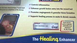 Download lyseal-L Lysine hydrochloride Video