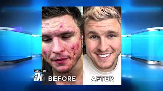 Download How One Man Defeated His Cystic Acne through Changing What He Ate Video
