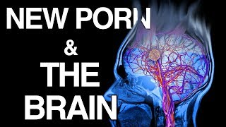 Download WHY Porn Changes the Brain | Science of NoFap [SFW] Video