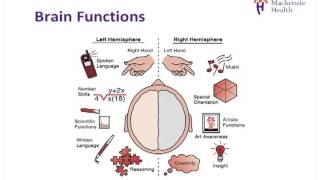 Download Stroke Education - Causes and Effects Video