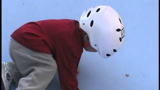 Download Youngest skater ever brakes his leg :( Video