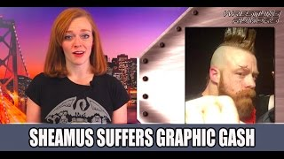 Download Sheamus Suffers Graphic Gash On Raw Video