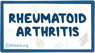 Download Rheumatoid arthritis - causes, symptoms, diagnosis, treatment, pathology Video