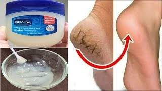 Download Topuk Çatlaklarına Çözüm - 3 Günde Yok Et - Ayak Mantarını Azalt- Yumuşak Topuk - Güzellik Bakım Video