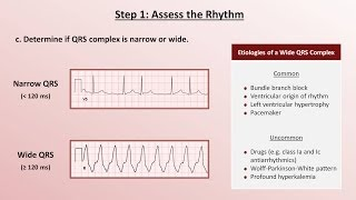 Download Intro to EKG Interpretation - A Systematic Approach Video