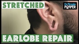 Download Stretched Earlobe Repair Video