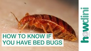 Download How To Find Bed Bugs - How To Know If You Have Bed Bugs Video