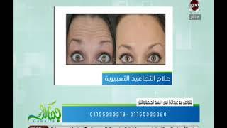 Download علاج التجاعيد التعبيرية - د.هبة عادل   جمالك Video