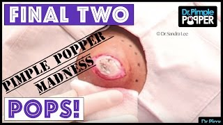 Download Our FINAL TWO POPS for you - PIMPLE POPPER MADNESS!! Video
