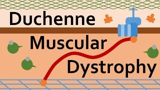 Download Duchenne Muscular Dystrophy and Dystrophin Video