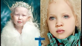 Download Top 10 Kids Who Are Unique & Amazing In The World - Kids With Unbelievable Features! Video