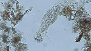 Download Micronaturaleza IV: Microorganismos de acuario Video