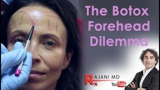 Download Botox Forehead Dilemma Explained- Dr Rajani Video