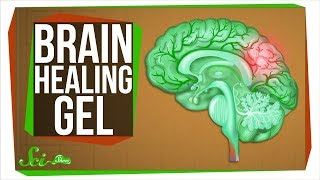 Download The New Gel That Regrows Brains Video