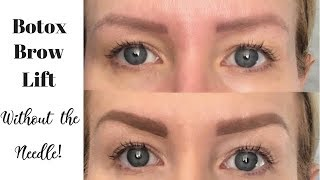 Download Look Younger! Get The Look Of A BOTOX BROW LIFT Using Makeup | Risa Does Makeup Video