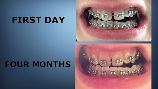 Download Braces 0-4 Months (Time-lapse) | Braces Progress Video