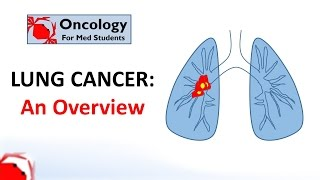 Download Lung Cancer: An Overview Video