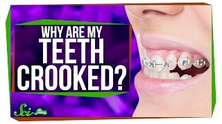 Download Why Do We Have Such Crooked Teeth? Video