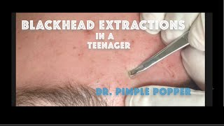 Download Comedone extractions for teenage acne. For medical education- NSFE Video