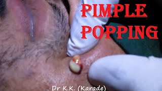 Download Huge Infected Pimple Popping on Face : Incision & Drainage of infected Cysts (INFLAMMATORY ACNE) Video