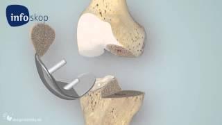 Download 3D medical animation - Kniegelenk - Schlittenprothese Video