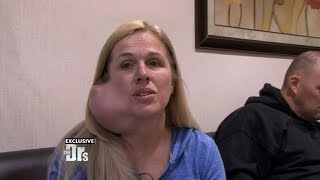 Download Woman with Large Facial Tumor Undergoes Life-Changing Surgery Video