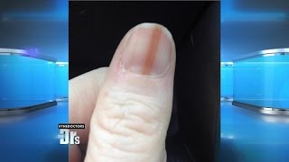 Download Melanoma on Your Nail? Video
