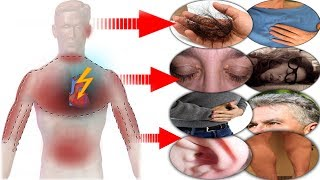 Download A Month Before a Heart Attack, Your Body Will Warn You With These 8 Signals! Video