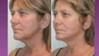 Download Mini Facelift Surgery by Top NY based Facial Plastic Surgeon Video