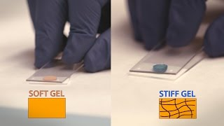 Download Repairing the Heart with Hydrogels - Headline Science Video