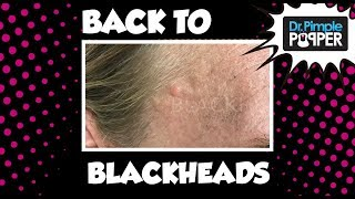 Download Back to Blackheads! Video