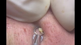 Download BLACKHEADS REMOVAL ON NOSE|mun|Sun Spa 88|Part19 Video