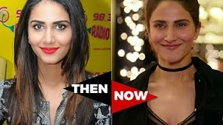 Download Vaani Kapoor Before And After Surgery Video