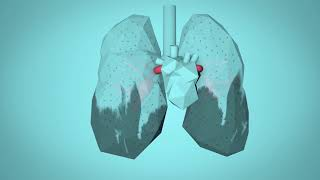 Download WHO: Breathe Life - How air pollution impacts your body Video