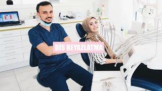 Download Diş Beyazlatma │Sık Sorulan Sorular Video