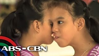Download Rated K: Conjoined twins Joy and Joyce need help Video