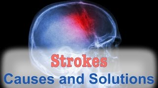 Download The Natural Solution for Strokes Video