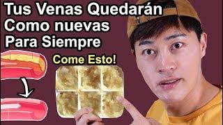 Download Elimina Grasas en tus Venas PARA SIEMPRE | 2 Remedios Caseros Que Te darán Venas Sanas como Nuevas Video