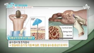 Download 고령화 사회의 위기 다발골수종!! Video