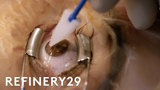 Download What Getting Laser Eye Surgery Is Really Like | Macro Beauty | Refinery29 Video