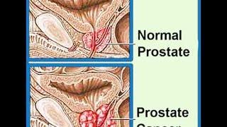 Download Prostate Cancer Video