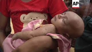 Download Plight of newborns and their mothers in Rohingya camps Video