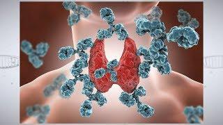 Download Understanding Autoimmune Thyroid Disease Video
