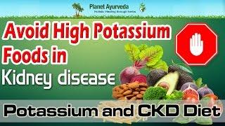 Download Avoid High Potassium Foods in Kidney disease | Potassium and CKD Diet Video